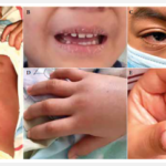 Salud Sonora detecta a ocho niños con Síndrome Inflamatorio Multisistémico en el HIES